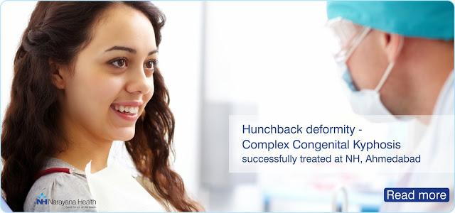 Hunchback deformity – Complex Congenital Kyphosis Surgery