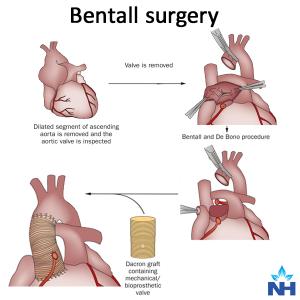 Bentall: A complex and high risk surgery | Narayana Health