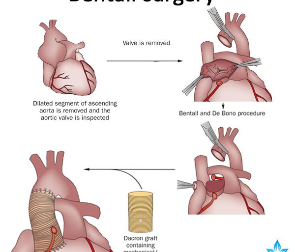 Bentall surgery