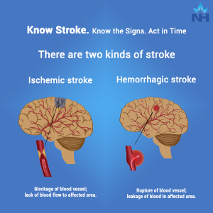 """Know Stroke. Know the Signs. Act in Time."" 