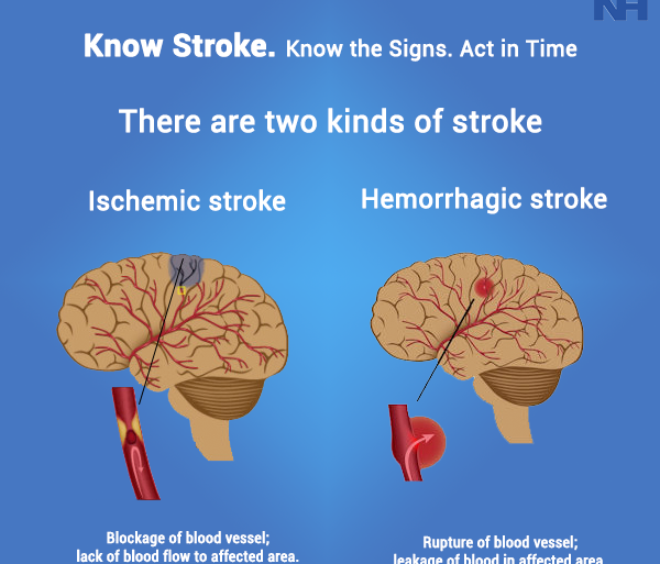 what is a stroke,types of stroke and treatment,warning signs of a stroke