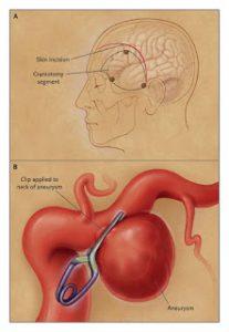Micro Neurosurgical Clipping of Brain Aneurysm