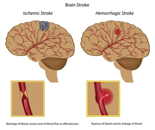 ischemic stroke and hemorrhagic stroke