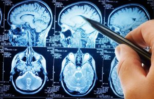 Addressing the Stroke Epidemic
