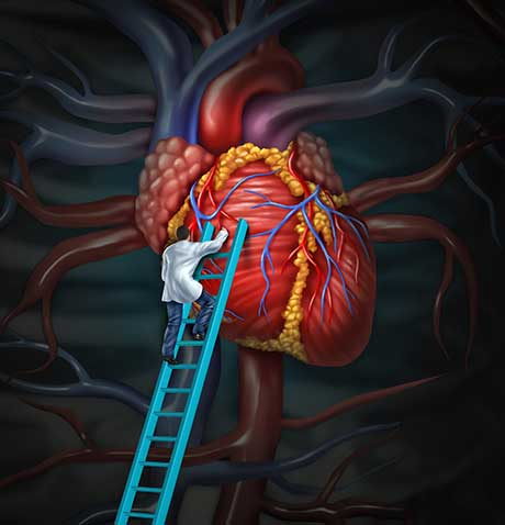 Recent Advances In Cardiac Surgery