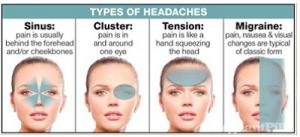 Types of headace