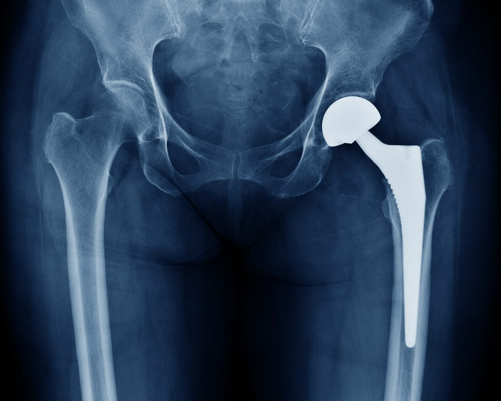 12 Year Old Undergoes Hip Replacement Surgery at NH, Mysore
