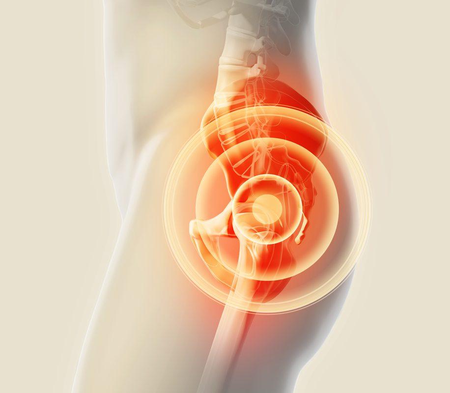 Successful Hip Replacement Surgery - Narayana super