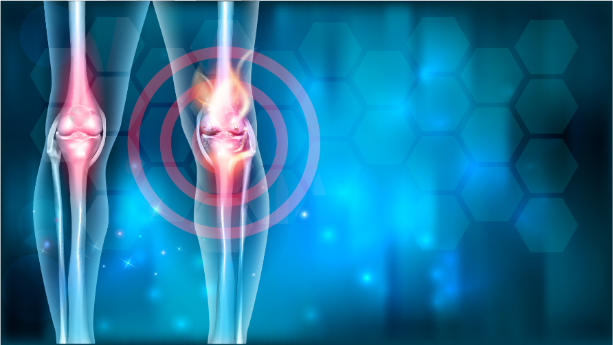 Osteoarthritis, its Diagnosis and Management