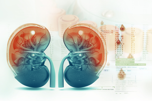 Kidney Disease – Myths and Facts