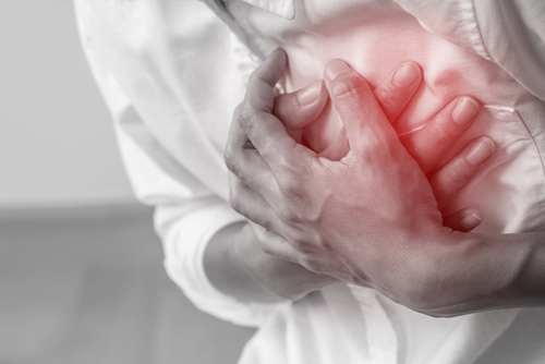 Acute Coronary Syndrome (Heart Attack) And The Importance of Interventional Cardiology