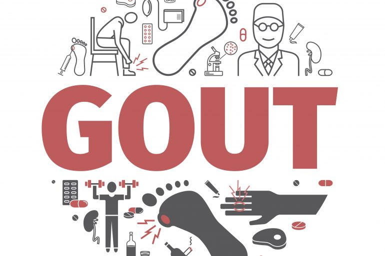 High uric acid or Gout – Causes, Prevention and Treatment