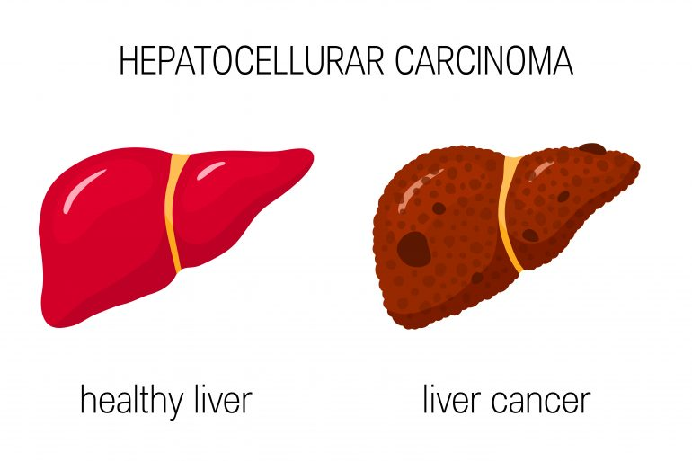 Hepatocellular Cancer: Two Diseases in One