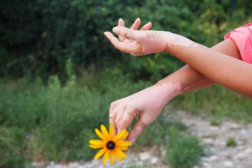 Bursting myths about Vitiligo: A non-contagious condition