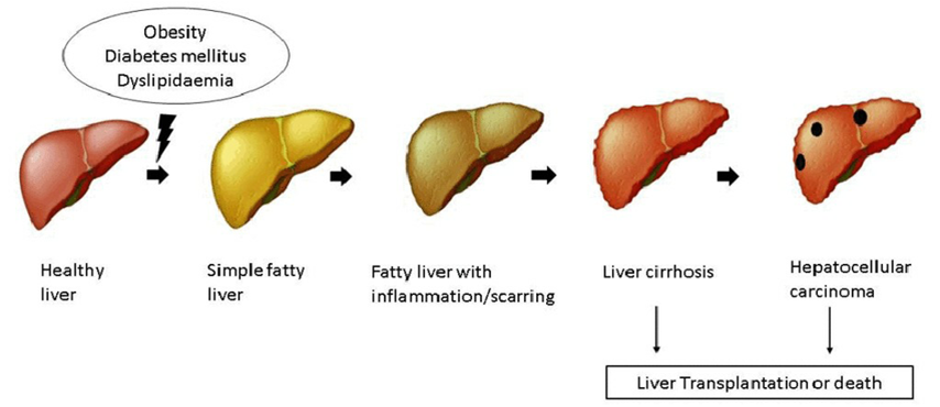 Grades and Consequences of Fatty Liver Disease