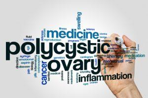 Polycystic Ovary Syndrome (PCOS) | Narayana Health