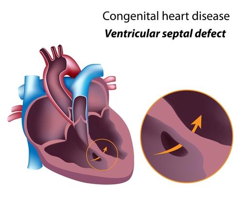 Congenital Heart Disease-Ventricular Septal Defect