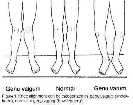 Knee alignment can be consider as genu valgum or genu varum