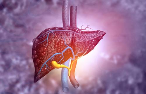 What is Fatty Liver?   Narayana Health