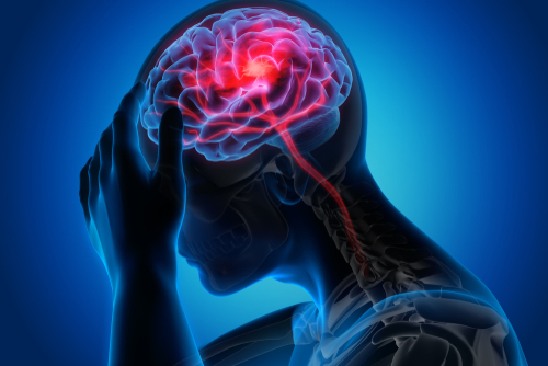 Window for brain stroke – extended up to 24 hours   Narayana Health