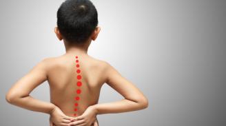 Spinal Deformities in Children