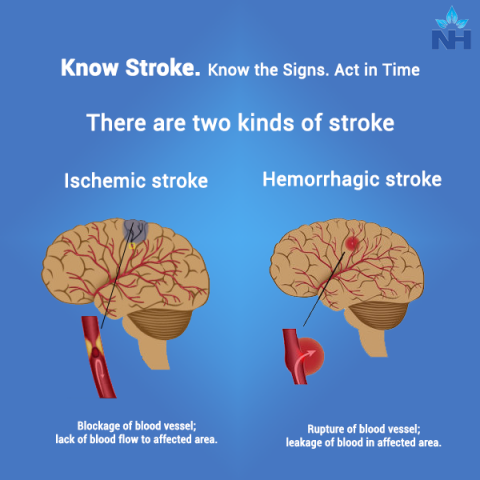 https://www.narayanahealth.org/blog/know-stroke-know-the-signs-act-in-time/