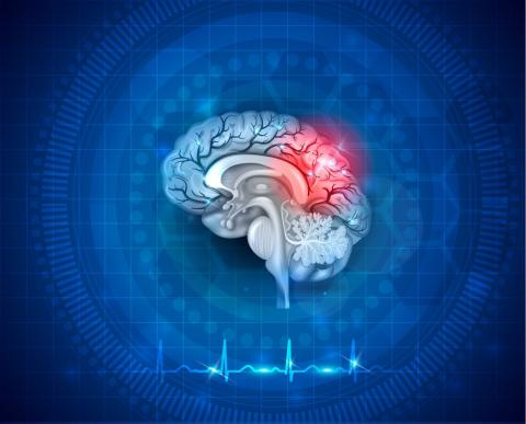 https://www.narayanahealth.org/blog/all-you-need-to-know-about-stroke/