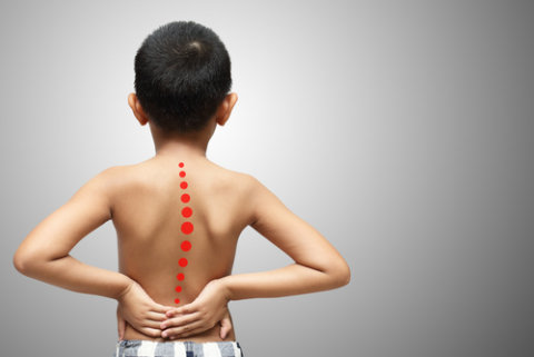 https://www.narayanahealth.org/blog/spinal-deformities-in-children/
