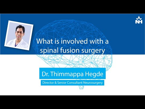 What is involved with a spinal fusion surgery | Dr. Thimappa Hegde