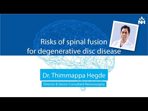 Risks of spinal fusion for degenerative disc disease | Dr. Thimappa Hegde