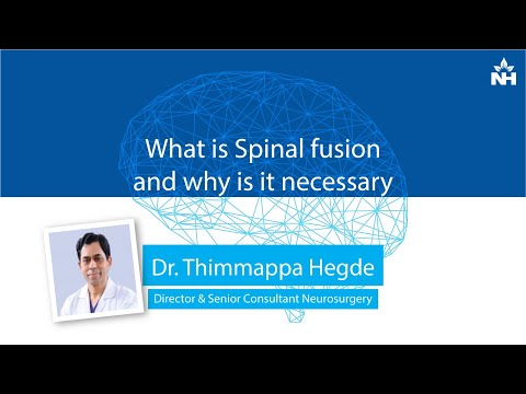 What is Spinal fusion and why is it necessary | Dr. Thimappa Hegde