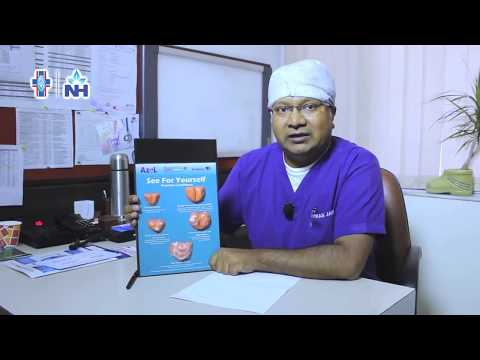 Prostate Cancer & Disease – Symptoms, treatment & cure | Dr. Vikas Jain