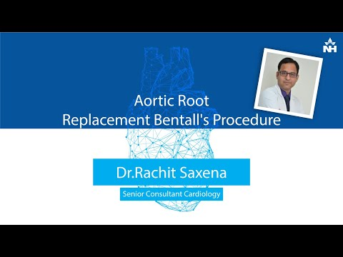 What is Aortic Root Replacement Bentall's Procedure | Dr. Rachit Saxena ( Hindi )