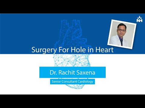 Surgery for Hole in Heart | Dr. Rachit Saxena